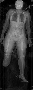 Lodox Body Scanner Image-Case-Study-1-bright